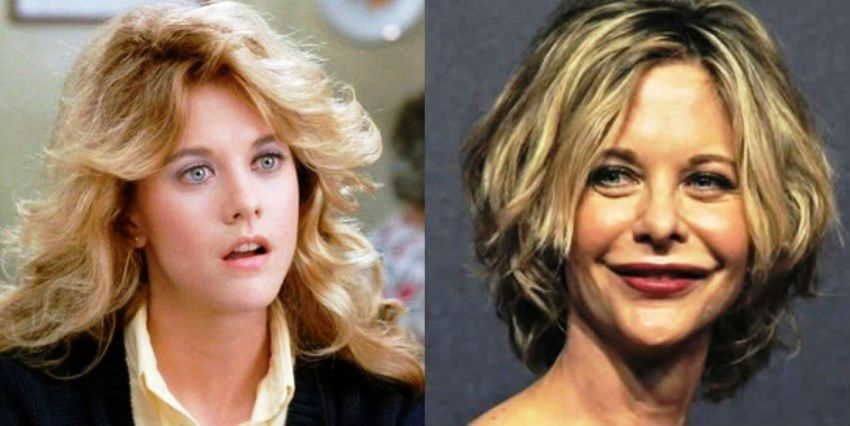 meg ryan plastic surgery.jpg